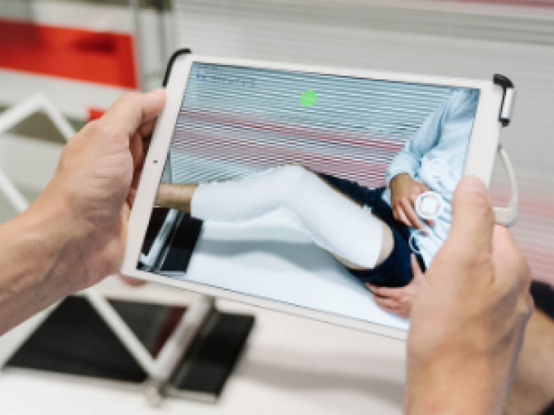 Aston University and Invibo to improve the future of fracture fixation